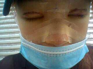 姐用耳软骨垫了鼻子,还动了眼睛,刚整完不久。