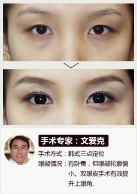 无痕翘睫双眼皮手术