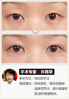 双眼皮手术的危害图片