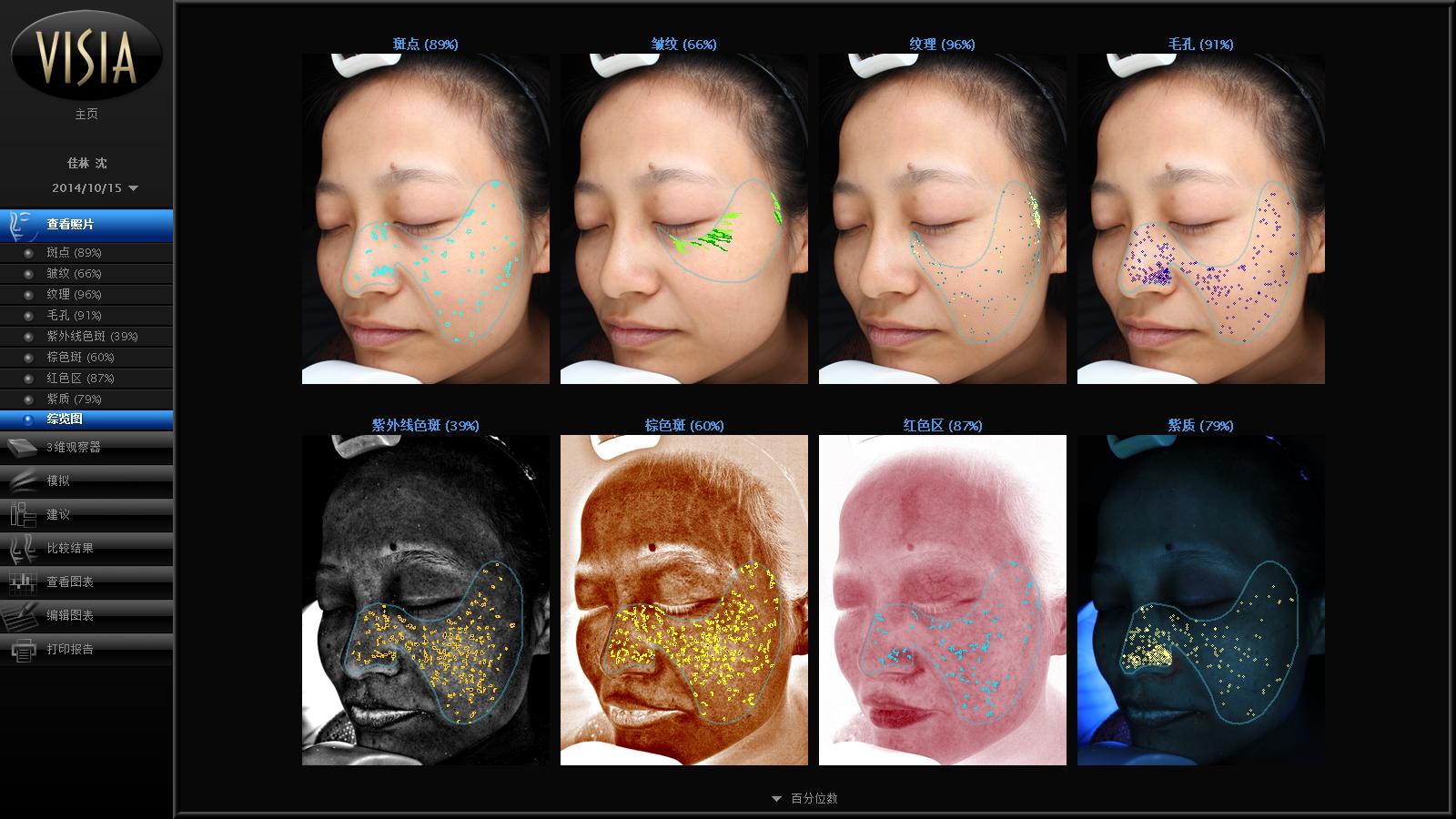 我们利用皮肤检测仪分析真皮层和表皮层痤疮情况