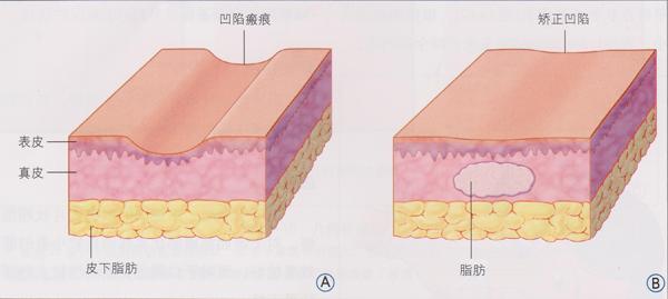 脂肪组织结构示意图