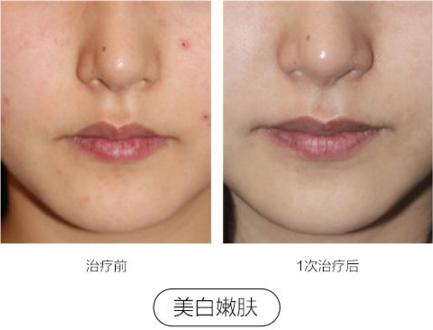 上海华美王者风范治疗皮肤粗糙效果好么?