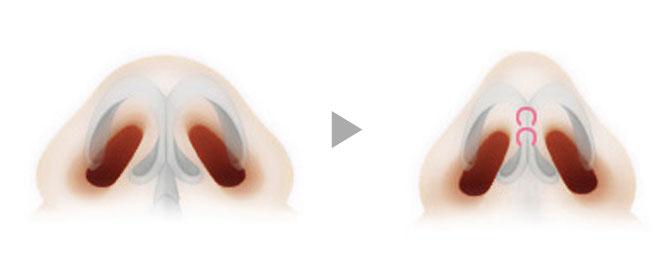 1、开放型切开法是将从鼻子内侧黏膜部位到鼻小柱外侧的手术方法。 2、手术时视野清晰,容易确认鼻子的内部构造,因此能更加准确的把握患者状态。 3、能够正确的植入软骨与假体,进行高水平的手术。 4、术后伤口虽然略发红但是通过细致的缝合将疤痕缩到最小,可通过化妆进行覆盖。 5、疤痕在手术3个月左右自然消失,此手术方法主要用于短鼻子和宽鼻头手术。